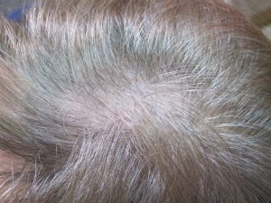 Alopecia androgenética en una mujer. Se observa ensanchamiento de la raya del pelo