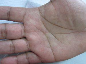Verrugas víricas en palma