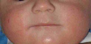 Eczemas en las mejillas de un lactante con dermatitis atópica