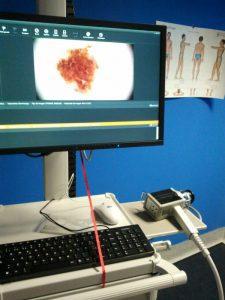 dermatoscopia digital