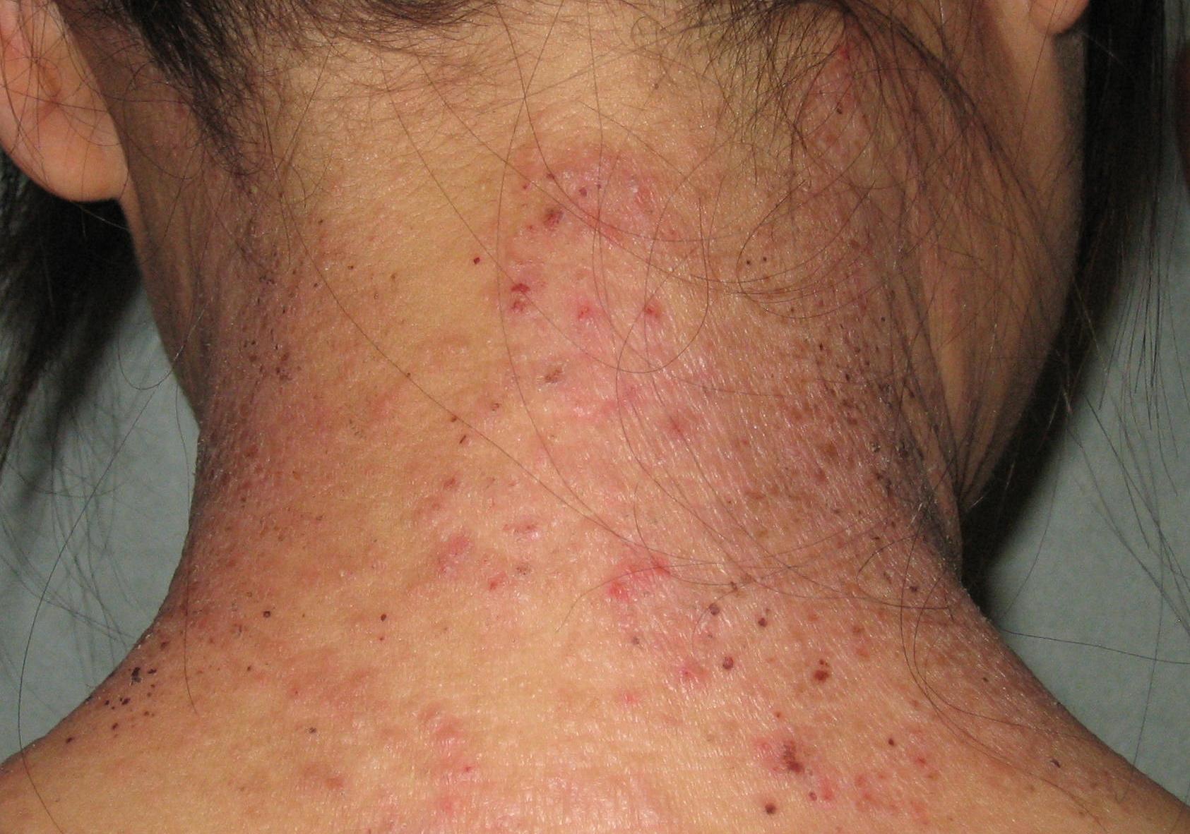 Atopichesky la dermatitis que se distingue de la psoriasis