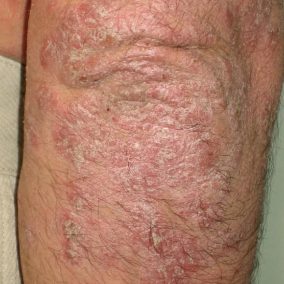 ¿Qué es la psoriasis?