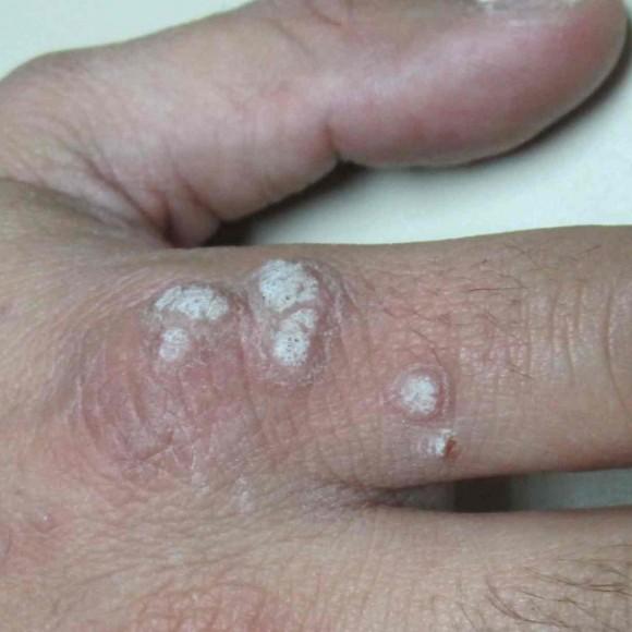 ¿Qué son las verrugas víricas, papilomas y condilomas? (virus del papiloma humano)