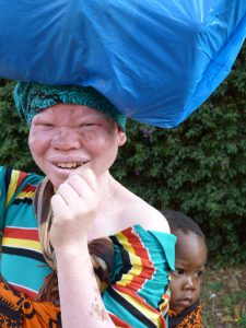 Mujer africana albina