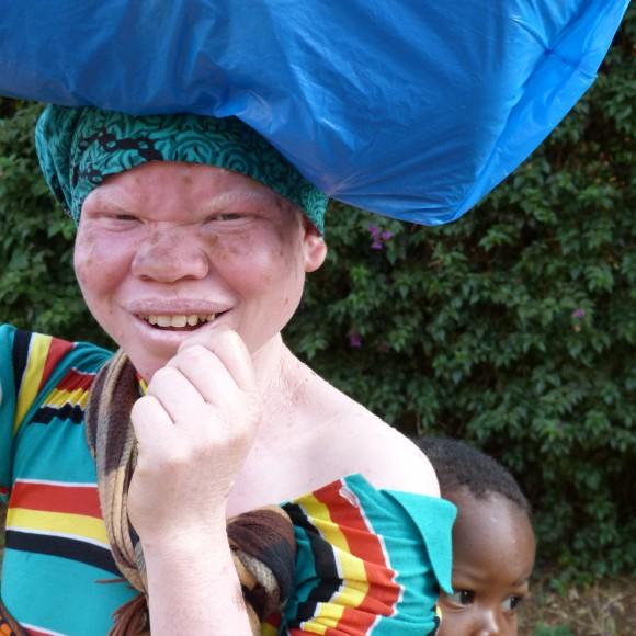 Personas de raza negra con piel blanca: El albinismo en África
