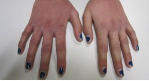 Dermatitis irritativa por lavado de manos