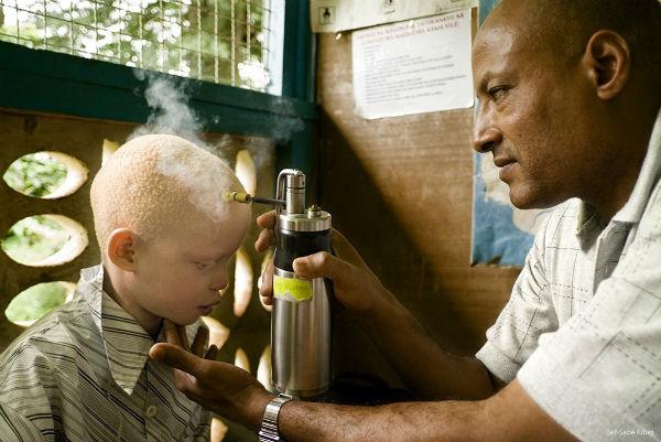 Crioterapia albino
