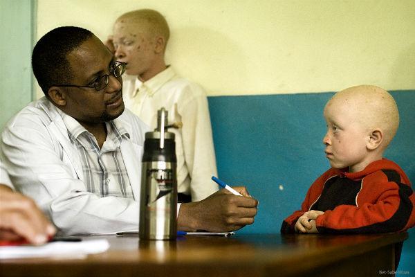Doctor Mavura con albino