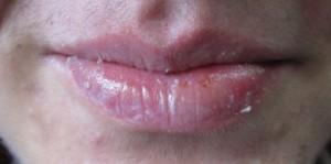 Picor en los labios mayores