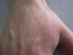eczema de manos