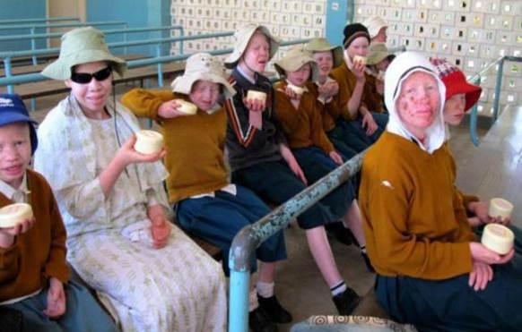 ensayo albinos kilisun