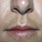 Manchas en la piel de la cara: melasma