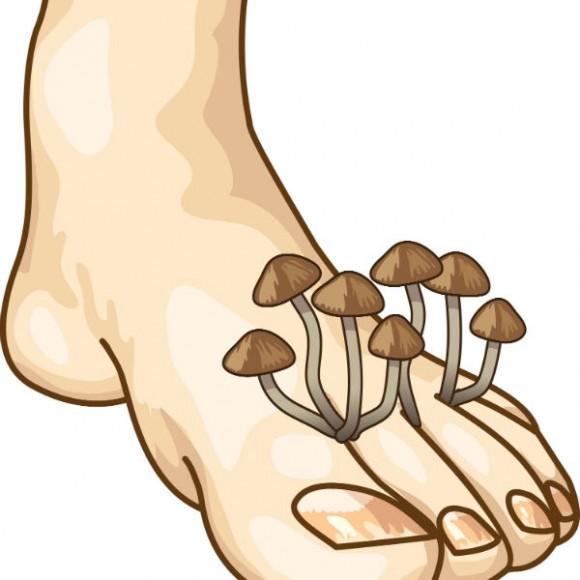 Pie de atleta: hongos en los pies