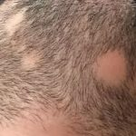Calvas en la barba por los nervios: alopecia areata