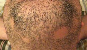 calvas barba