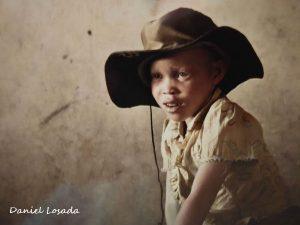 albino daniel losada