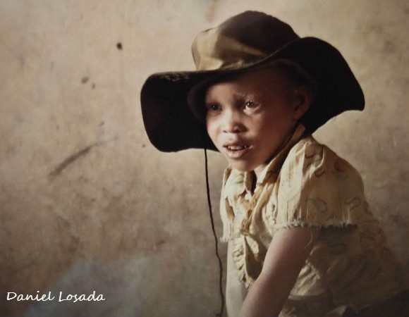 ¿Quién está detrás de las matanzas a personas con albinismo en Tanzania?