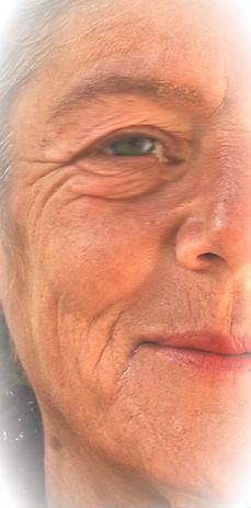 Fotoenvejecimiento: arrugas y manchas por el sol