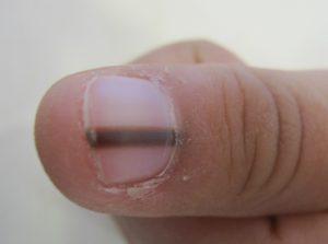 Como luchar con la pigmentación en la piel