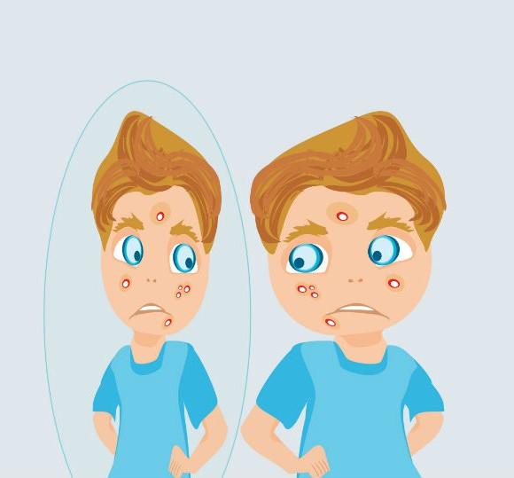 5 pautas básicas para el tratamiento y cuidado del acné