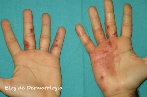 Atopicheskogo de la dermatitis de los adultos