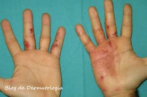 eczema dishidrotico 7