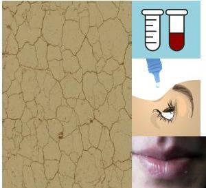 """Efectos secundarios más frecuentes de la isotretinoína (""""roacután"""") para el tratamiento del acné"""