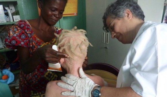 Historias sobre albinismo desde RD Congo