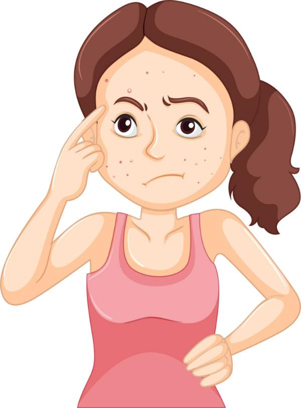 acné mujer adulta
