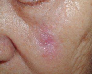basocelular cicatriz