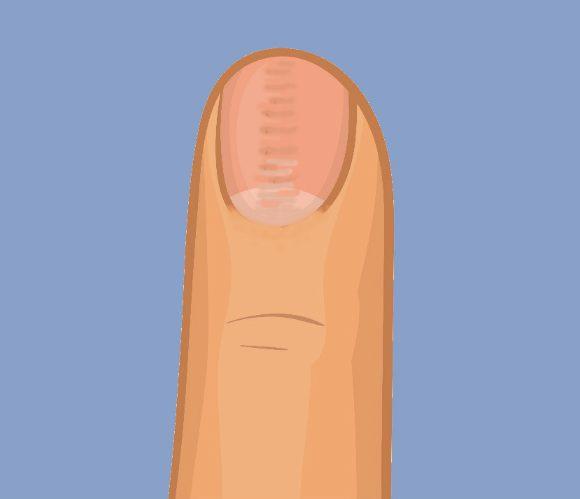 Un surco en la uña (distrofia ungueal media canaliforme)