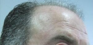 Alopecia androgenética en un hombre