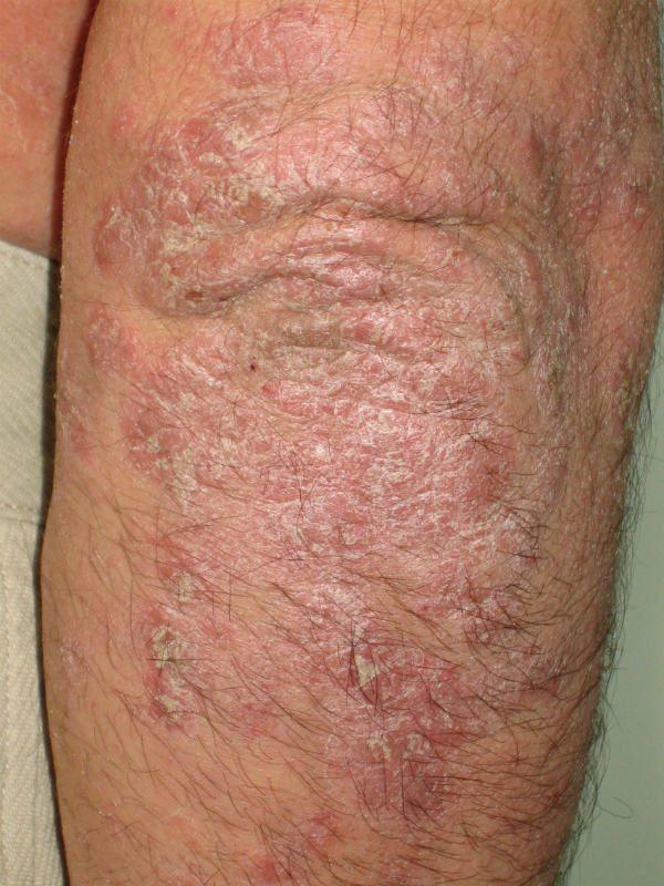 Placas de psoriasis