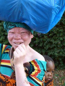Albinismo en África