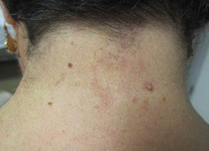 Fibromas en el cuello