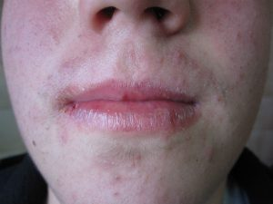 labios secos