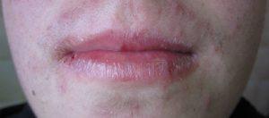 labios isotretinoina