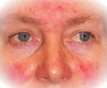 Nuevo Tratamiento Para La Rosácea Ivermectina En Crema Doctora