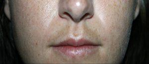 melasma labio inferior. Mancha en la cara