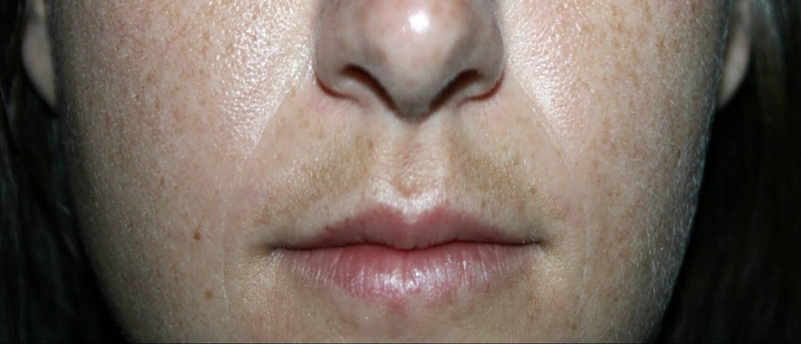 Dermatofibroma: un lunar duro en la pierna | Doctora Lorea ...