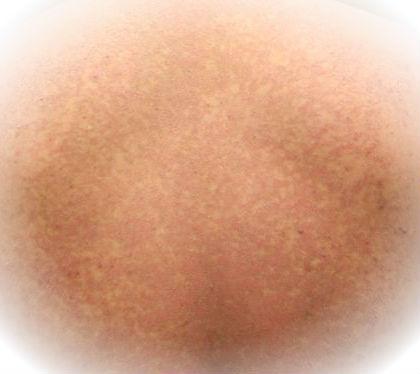 manchas marrones en la piel ninos