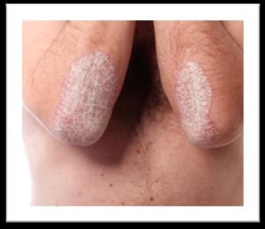 psoriasis codos