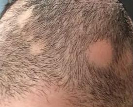 El medio para el crecimiento de los cabello de las ultras hair de los sistemas las revocaciones