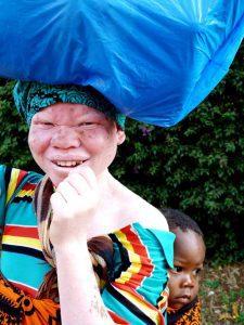 albinismo Tanzania
