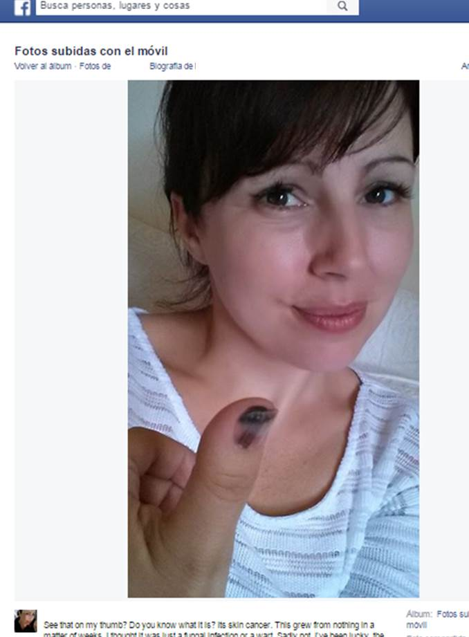 melanoma uña | Doctora Lorea Bagazgoitia Dermatología