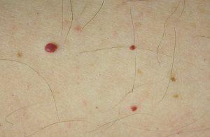 Foto con bolitas rojas, llamadas punto rubí