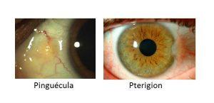 pinguecula y pterigion