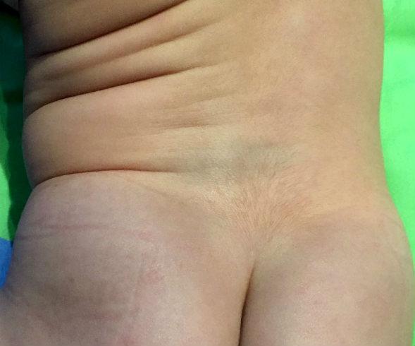 manchas en la piel del bebe blancas