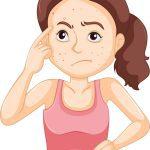 Causas del acné de la mujer adulta
