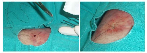 biopsia piel